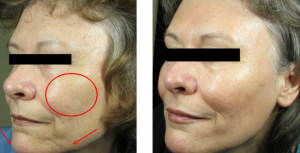 Wrinkle-Relief-Filler-Injection66-300x153