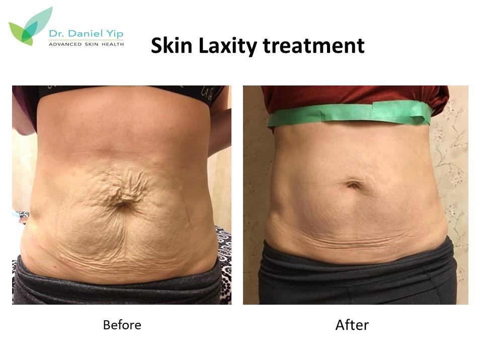 Skinlaxity1